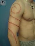 Fousage - skarifikace,cutting